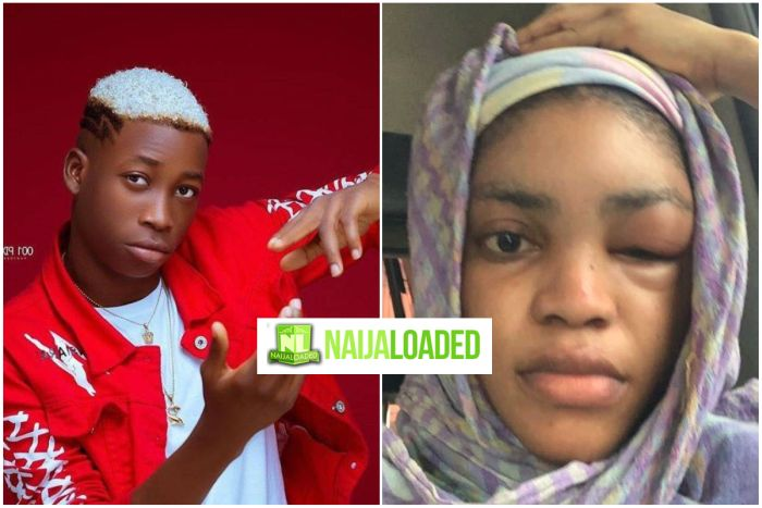 Lil Frosh's Girlfriend, Liya Shares Detailed Account Of Assault